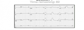 New ECG Interpretation Skill Evaluation Tool